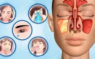 Ингаляции небулайзером при синусите: инструкция по применению