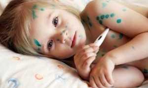 Атипичная ветрянка у детей: что делать, как лечить