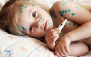 Ветрянка у детей откуда начинается: что делать, как лечить