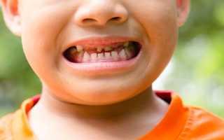 Зубы у детей плохие
