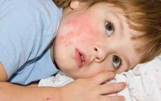 Опоясывающий лишай симптомы и лечение у детей