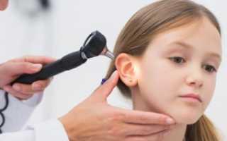 Лечение экссудативный отит у детей