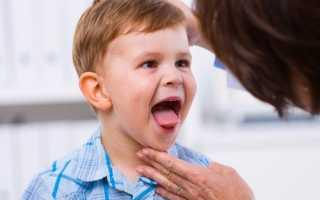 Герпес на миндалинах у ребенка: что делать, как лечить