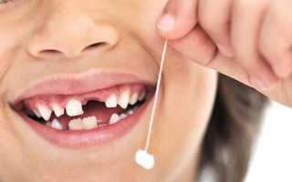 У ребенка шатается коренной зуб что делать