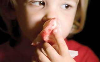 Кровь из носа у ребенка при насморке: как лечить