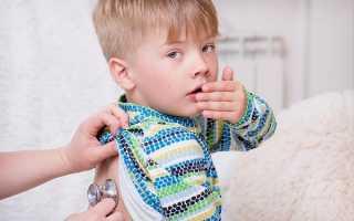 Кашель сухой лечение в домашних условиях у детей