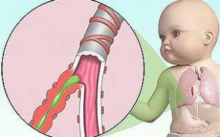 Ингаляции при сухом кашле в домашних условиях для детей: инструкция по применению