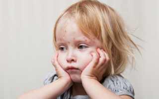 Ветрянка у детей в легкой форме: что делать, как лечить