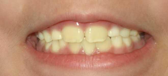 У ребенка желтые зубы