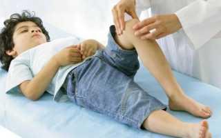 Артрит инфекционный у детей: что делать, как лечить