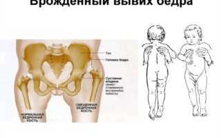 У ребенка болит нога в бедре при ходьбе причины: как распознать, чем лечить