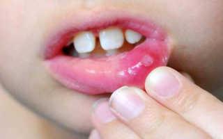 Стоматит у годовалого ребенка чем лечить
