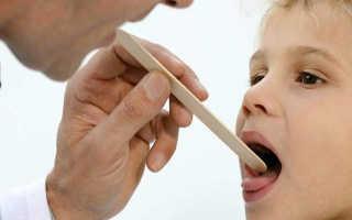 Герпесная ангина чем лечить у ребенка: как распознать, чем лечить
