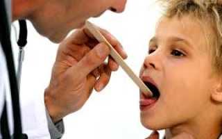 Чем лечить горло ребенку 2 года без температуры: как распознать, чем лечить