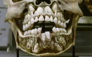 У ребенка растут коренные зубы а молочные не выпали