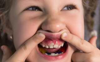 У ребенка зубы растут вторым рядом
