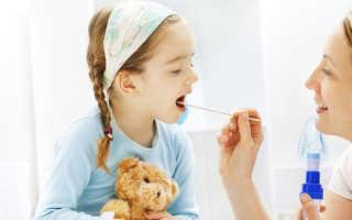 Горловой кашель у ребенка как лечить: как распознать, чем лечить