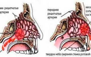 Как остановить кровь из носа у ребенка в домашних