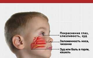 У месячного ребенка аллергия: как распознать, чем лечить