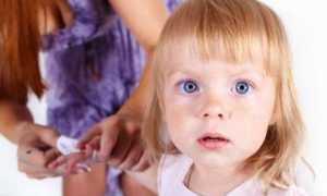 Лишай как распознать у ребенка