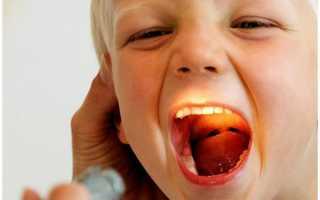 Средства от боли в горле для детей: как распознать, чем лечить