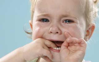 Опоясывающий герпес у детей: что делать, как лечить