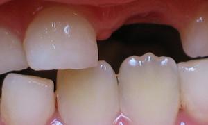 Отличие постоянных зубов от молочных