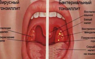 Как лечить хроническую вирусную ангину у детей