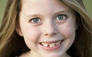 У ребенка кривые молочные зубы