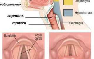 Ингаляции при ларингите небулайзером препараты для детей: инструкция по применению