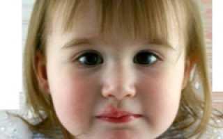 Вирус герпеса 6 типа у детей что это такое: что делать, как лечить