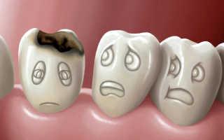 Кариес на молочных зубах у детей что делать