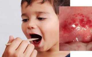 Сыпь в горле у ребенка: что делать, как лечить
