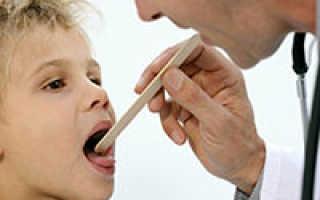 Можно ли ангину лечить без антибиотиков у ребенка