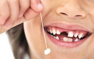 Смена зубов у детей схема замены молочных на постоянные