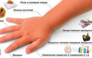Аллергия на глазах у ребенка: как распознать, чем лечить