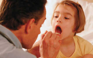 Можно ли вылечить ангину без антибиотиков у ребенка