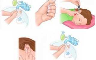 Капли в нос при отите у детей: инструкция по применению