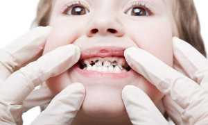 Почему у ребенка молочные зубы чернеют