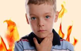 При ангине чем обработать горло ребенку: как распознать, чем лечить