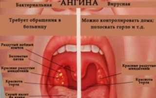 Бактериальная ангина у детей симптомы и лечение: как распознать, чем лечить