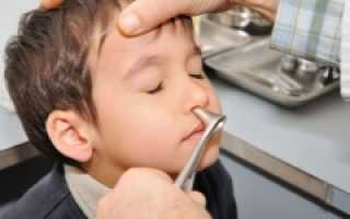 Полипы в носу симптомы у ребенка