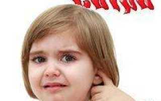 Сыпь за ушами у ребенка: что делать, как лечить