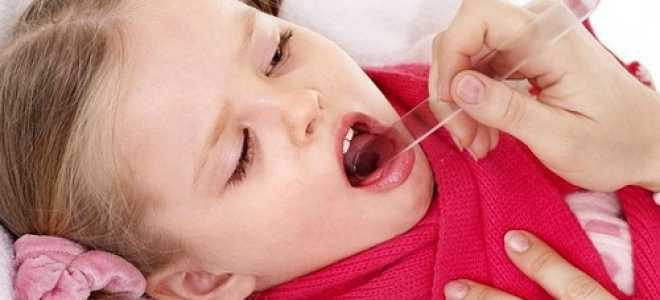 Катаральная ангина симптомы и лечение у детей: как распознать, чем лечить