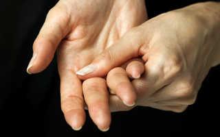 У ребенка герпес на руке: что делать, как лечить