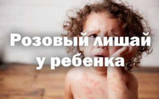 Розовый лишай лечение в домашних условиях у детей