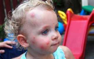 Прыщики на подбородке у ребенка: что делать, как лечить
