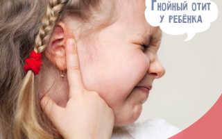 Гнойный отит у ребенка лечение