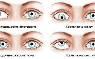 Ребенок в 2 месяца косит глаза к носу