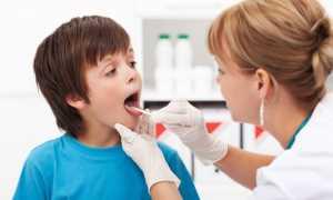 Ангина и сыпь на теле у ребенка: как распознать, чем лечить